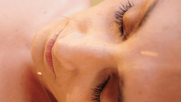 acupuncture for face